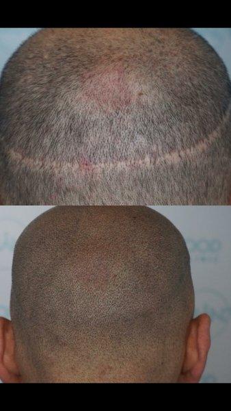 Virginie Gougeard Maquillage Permanent Micropigmentation